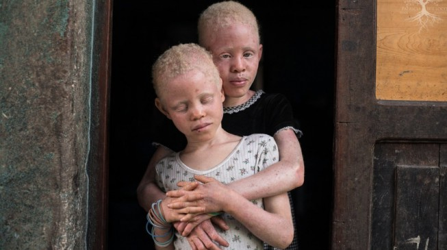 Ban ki-Moon: Merely a myth… Albinos have no magical powers