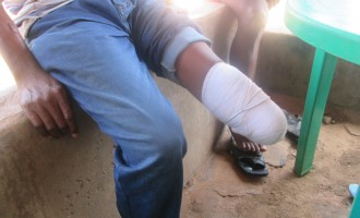 FORGOTTEN SOLDIERS I: 'Maggots in my leg'… an amputee-soldier's 44 months of begging the army for 'original' prosthesis