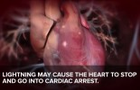 ALERT: Lightning can give you a cardiac arrest