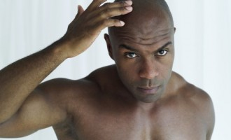 Bald young men at higher risk of heart disease, study claims