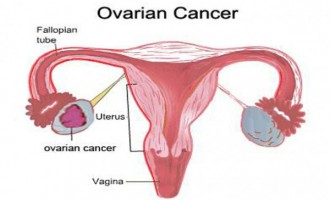 10 warning signs and symptoms of ovarian cancer