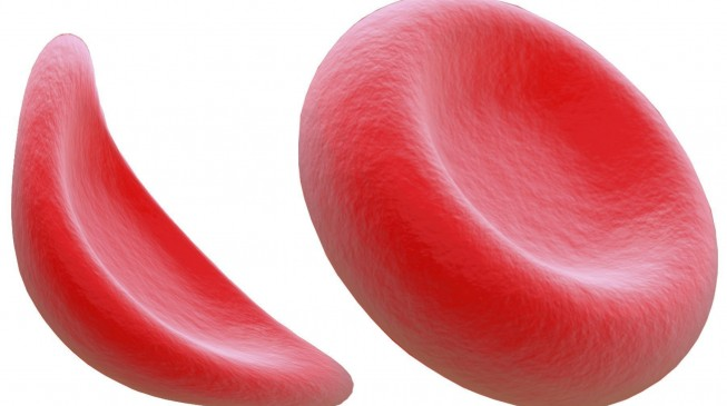 'Nigeria has highest rate of sickle cell anaemia in the world BUT no money for cure'