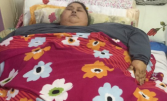 World's fattest woman loses 250kg after surgery in India