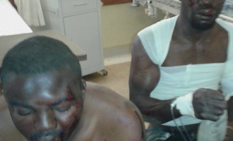 Two Nigerians beaten mercilessly in South Africa