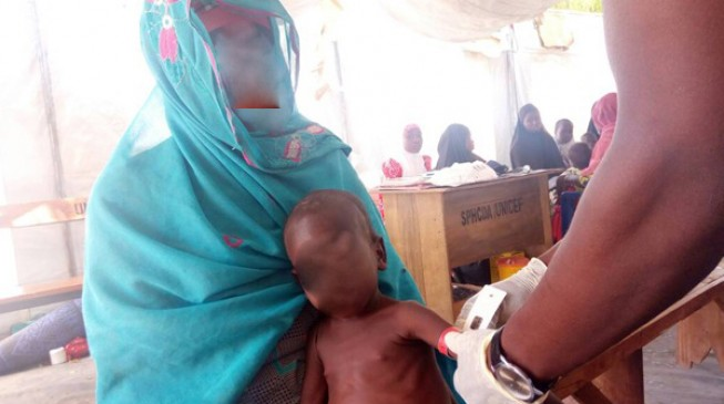 ALERT: 990 children 'risk dying from malnutrition' in Borno IDP camp