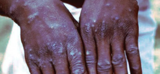 No monkeypox in Lagos, says Adewole