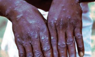 Delta confirms three cases of suspected monkeypox disease