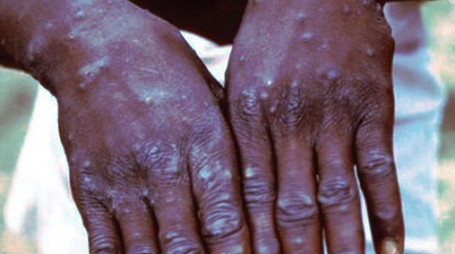 Delta confirms three cases of suspected monkeypox disease