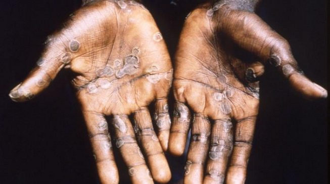 NCDC: 31 suspected cases of monkeypox reported in seven states