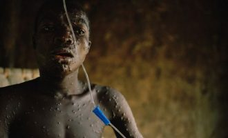 Panic in south-east as parents withdraw children from schools over monkeypox