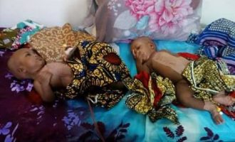 Doctors separate conjoined twins in Yola