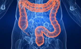 ALERT! 45 is new age to start colorectal cancer screening
