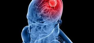 CT scan increases risk of brain tumour, study finds