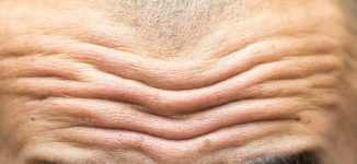 Study claims deep forehead wrinkles point to high risk of cardiovascular disease