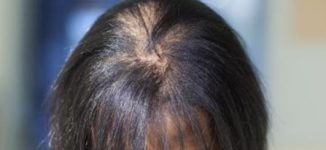 Six common causes of hair loss in men and women